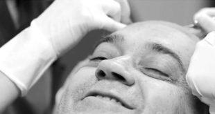 عملية زراعة الشعر بدون الم